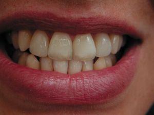 Zahnästhetische Behandlung des Zahnarztes Gojnic in Bremen